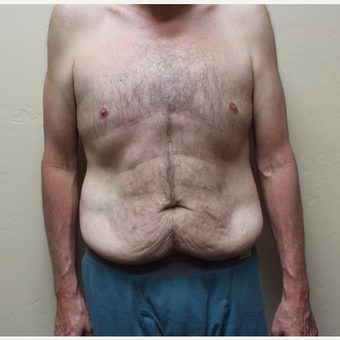 45-54 year old man treated with Tummy Tuck before 3531583