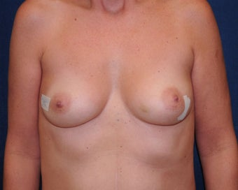 immediate bilateral mastectomy and immediate reconstruction  before 692749