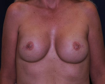 immediate bilateral mastectomy and immediate reconstruction  after 692749