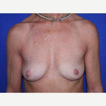 Breast Augmentation before 3743700