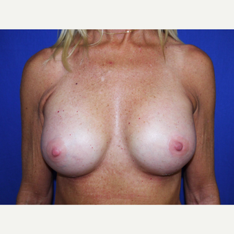 Breast Augmentation after 3743700