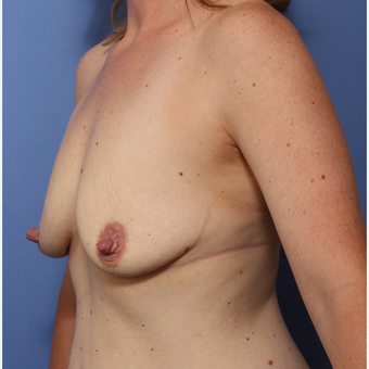 25-34 year old woman treated with Breast Lift with Implants before 3782979
