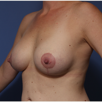 25-34 year old woman treated with Breast Lift with Implants after 3782979
