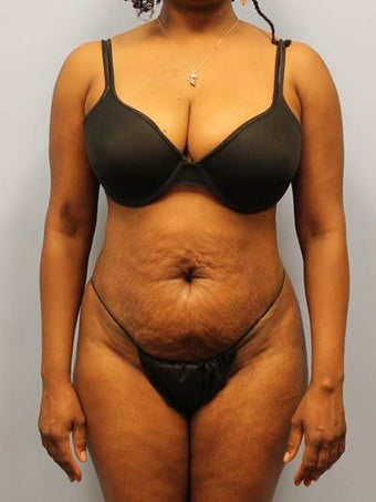 Tummy Tuck with Liposuction before 1393622