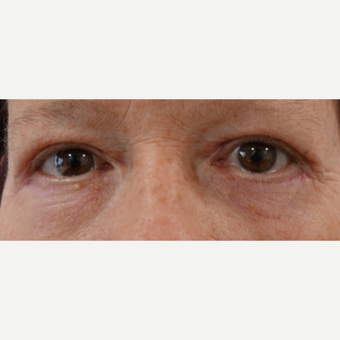 55-64 year old woman treated with Eye Bags Treatment after 3479798