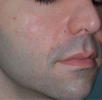 Young Male Treated for Nasolabial Folds and Cheek Volume after 1367276