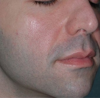 Young Male Treated for Nasolabial Folds and Cheek Volume before 1367276