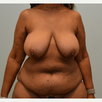 "Tummy tuck, liposuction, and enhanced breast lift (""autoaugmentation"") on 64 year old patient before 2372526"