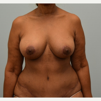 "Tummy tuck, liposuction, and enhanced breast lift (""autoaugmentation"") on 64 year old patient after 2372526"