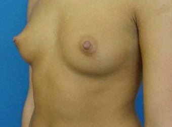 Breast Augmentation (Transaxillary) before 316999