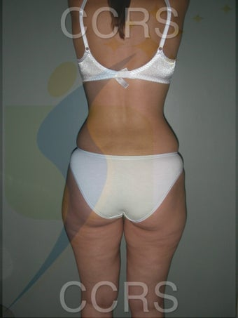 VASER lipo - 28 yrs. old (abdomen, back, flanks & thighs) 636166