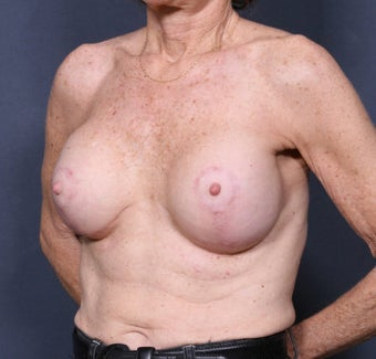 Breast Lift after 371014