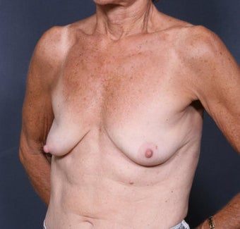 Breast Lift before 371014