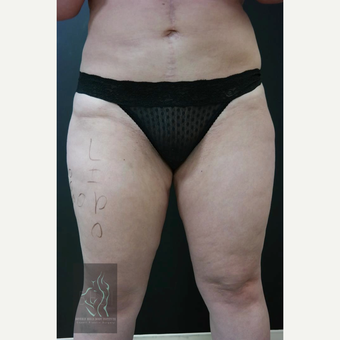 35-44 year old woman treated with Liposuction before 3591148