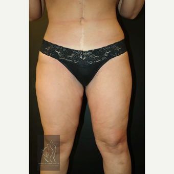 35-44 year old woman treated with Liposuction after 3591148