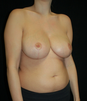 Breast Reduction after 1252046