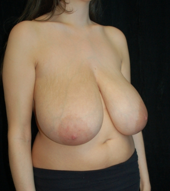 Breast Reduction before 1252046
