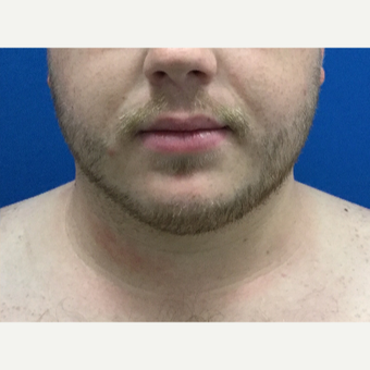 25-34 year old man treated with Chin Liposuction after 3496312
