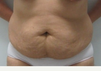 45-54 year old woman treated with Tummy Tuck before 3695192