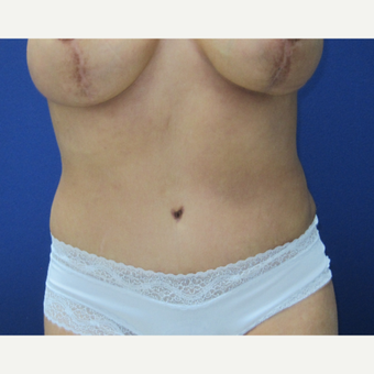 45-54 year old woman treated with Tummy Tuck after 3695192