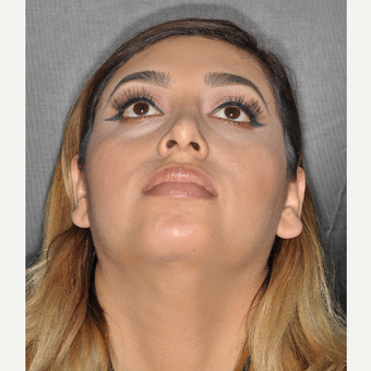25-34 year old woman treated with Chin Liposuction 7 Days Post-op