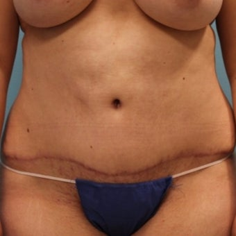 25-34 year old woman treated with Tummy Tuck after 1887498