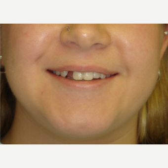18-24 year old woman treated with Dental Implants before 3638329