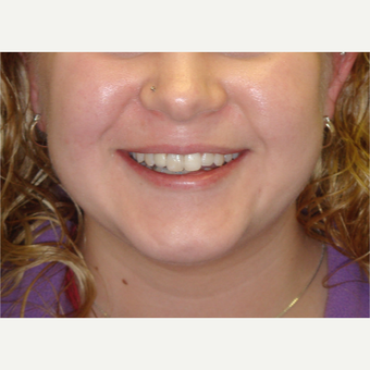 18-24 year old woman treated with Dental Implants after 3638329