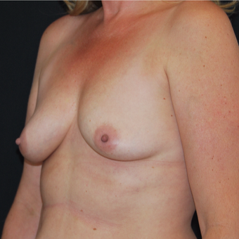 45-54 year old woman treated with Breast Augmentation before 3493780
