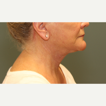 55-64 year old woman requesting Neck Lift after 3031332