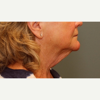 55-64 year old woman requesting Neck Lift before 3031332