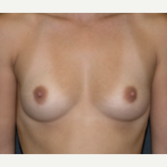 45-54 year old woman treated with Breast Augmentation before 3454815