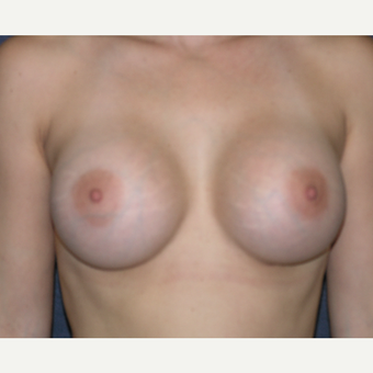 45-54 year old woman treated with Breast Augmentation after 3454815