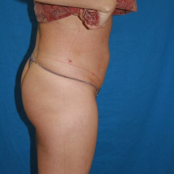55-64 year old woman treated with Smart Lipo after 2350793