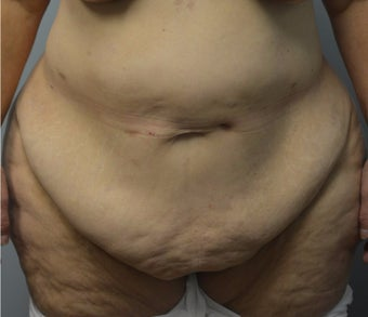 65-74 year old woman treated with Tummy Tuck before 3093234