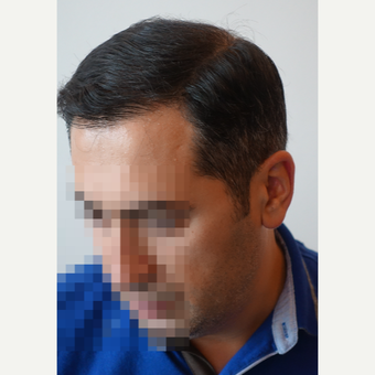 35-44 year old man treated with FUE Hair Transplant after 3682586