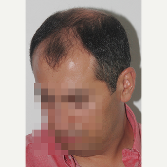 35-44 year old man treated with FUE Hair Transplant before 3682586