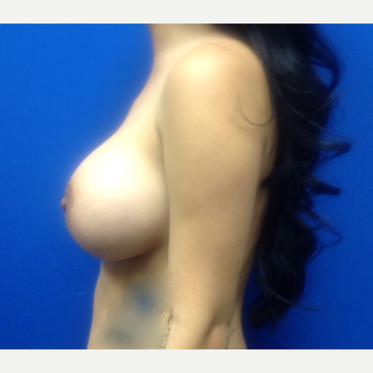 35-44 year old woman treated with Breast Augmentation after 3019148