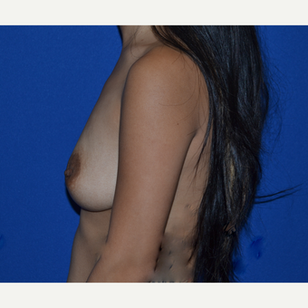 35-44 year old woman treated with Breast Augmentation before 3019148