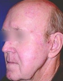 45-54 year old man treated with ProFractional Laser after 1551010