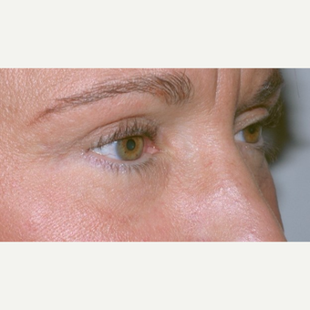 Eyelid Surgery after 3346329