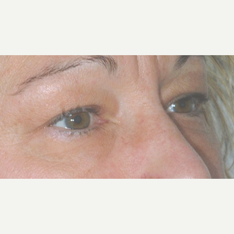 Eyelid Surgery before 3346329