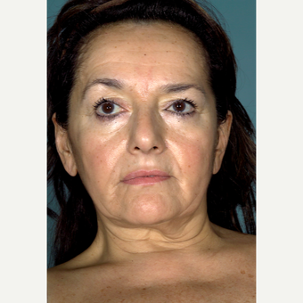 45-54 year old woman treated with Facelift before 3097558