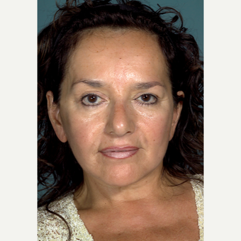 45-54 year old woman treated with Facelift after 3097558