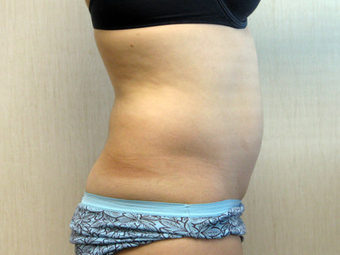 Liposuction of the Abdomen and Flanks 336541