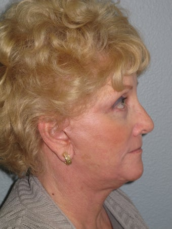 75 year old facial plastic surgery patient from Temecula 985948
