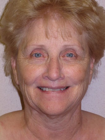 75 year old facial plastic surgery patient from Temecula before 985948