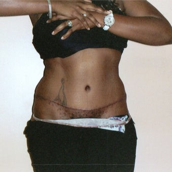 25-34 year old woman treated with Tummy Tuck after 1545324