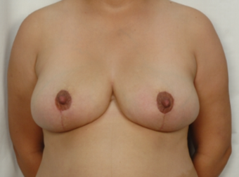 31 year old woman treated with Breast Reduction after 3026844