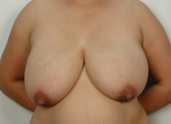 31 year old woman treated with Breast Reduction before 3026844